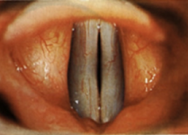 Adducted vocal folds