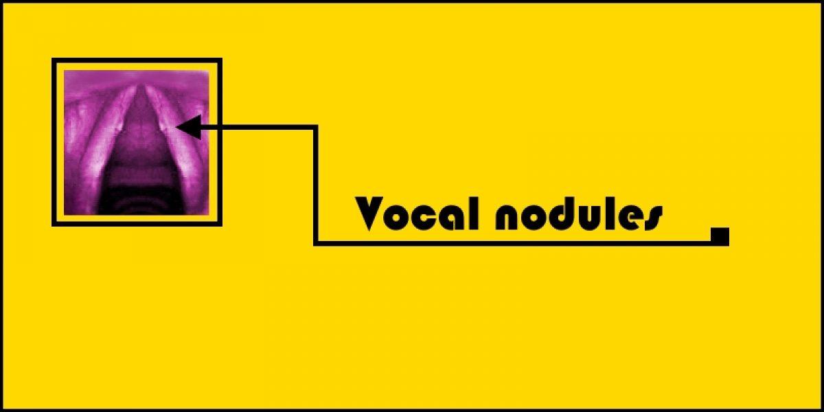 Vocal Nodules