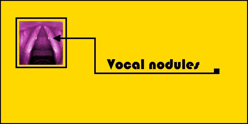 vocal nodules header