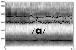 Spectrogram of /a/