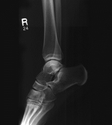 Planar X-ray of ankle and extended foot