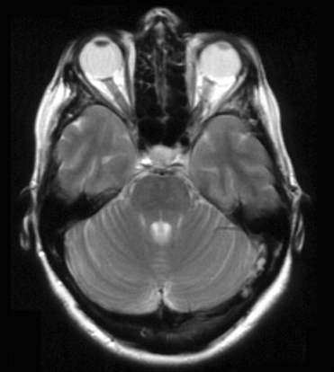 T2 axial of normal brain