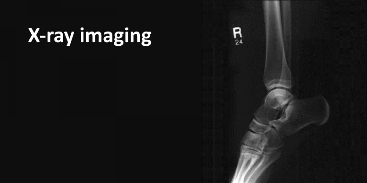 X-ray Imaging